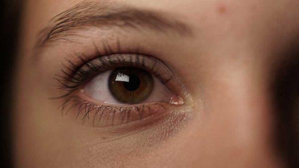 ea28a307d الهالات السوداء تحت العين Dark circles under eyes - كل يوم معلومة طبية