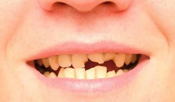 نمو الاسنان