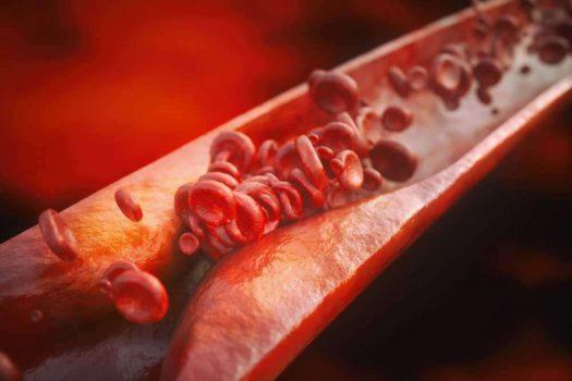 جلطات الدم