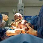 فوائد الولادة القيصرية