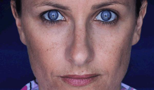 علاج الكلف العميق