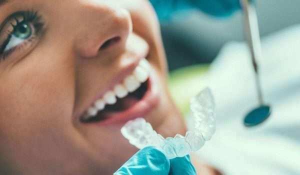 تبييض الاسنان عند الطبيب أو اسعار تبييض الاسنان