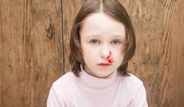 اسباب نزيف الانف المفاجئ عند الاطفال