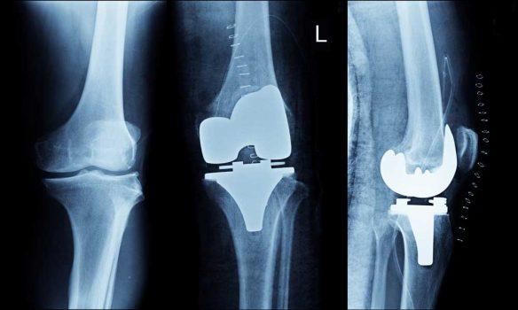 استبدال مفصل الركبة