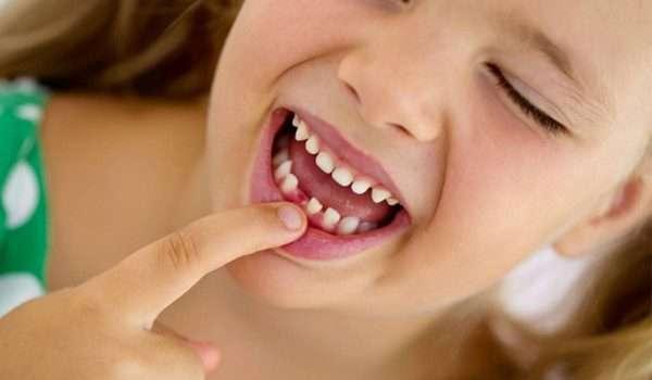 اعراض ظهور الضروس عند الاطفال