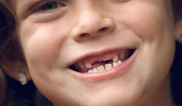 تبديل الاسنان عند الاطفال