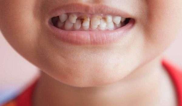 تعرف على أسباب وأعراض تسوس الاسنان عند الاطفال