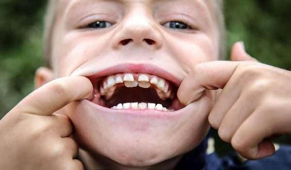 ظهور الاسنان الدائمة خلف اللبنية H, اسنان القرش لدى الاطفال