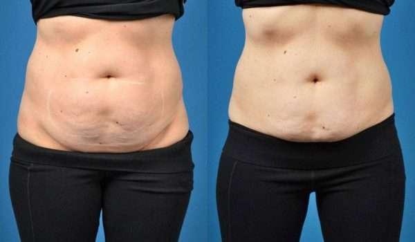 بالصور عمليات نحت الجسم قبل وبعد .. ما هي النتائج المتوقعة؟