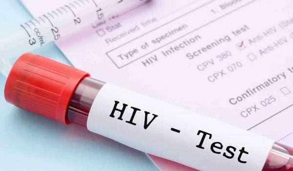أمراض نقص المناعة المكتسبة