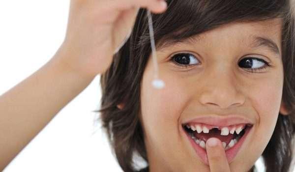 تأخر تبديل الأسنان عند الأطفال .. ما هي الأسباب؟