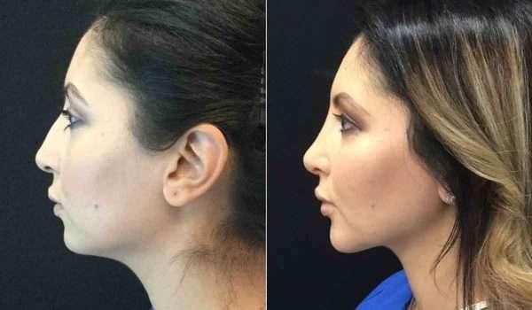 شفط-دهون-الوجه-قبل-وبعد1