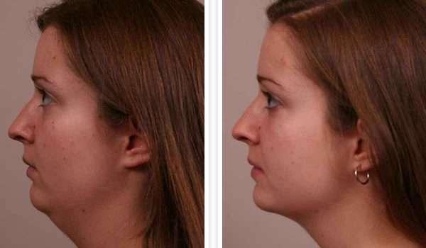 شفط-دهون-الوجه-قبل-وبعد2