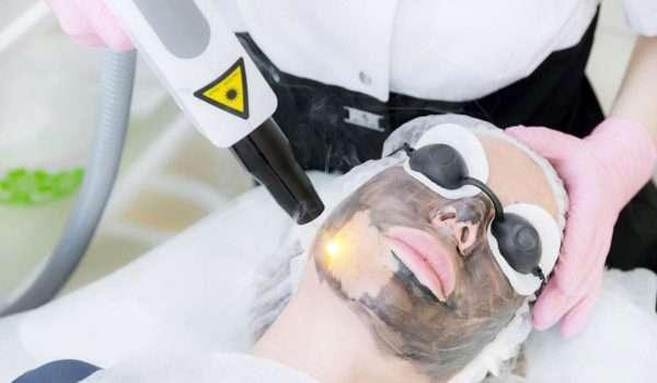 اضرار الليزر الكربوني للوجه