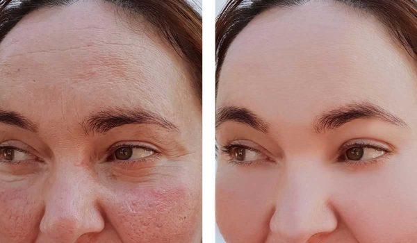 نتائج تقشير الوجه بالليزر قبل وبعد