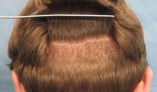 نتائج عملية زراعة الشعر