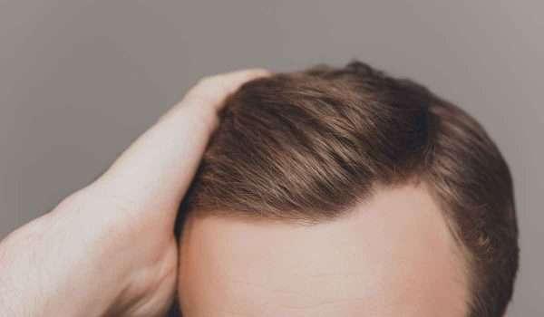 نصائح بعد زراعة الشعر