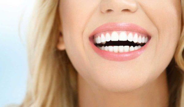 ابتسامة-هوليود1
