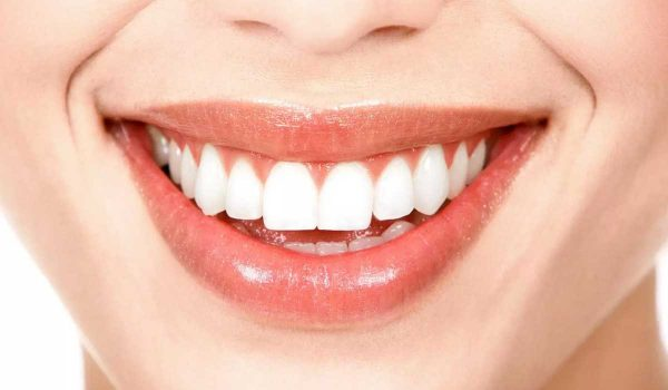 اسعار-تبييض-الاسنان-بالليزر2