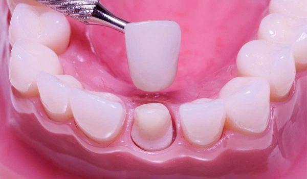 ما هو تاج أو تلبيس الاسنان الزيركون ؟ وما اسعار تلبيس الاسنان الزيركون ؟
