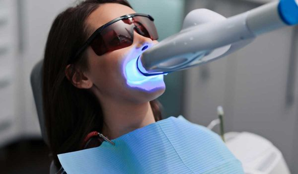 الم الاسنان بعد التبييض بالليزر