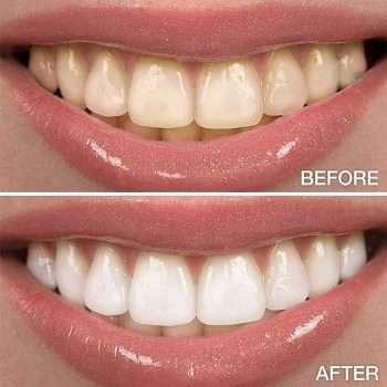 تنظيف الاسنان بالليزر قبل وبعد