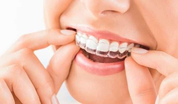 قوالب تبييض الاسنان