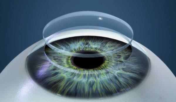 87f6e9b65 كيف تكون الرؤية بعد زراعة القرنية ؟ وتوقعات ما بعد العملية - كل يوم ...