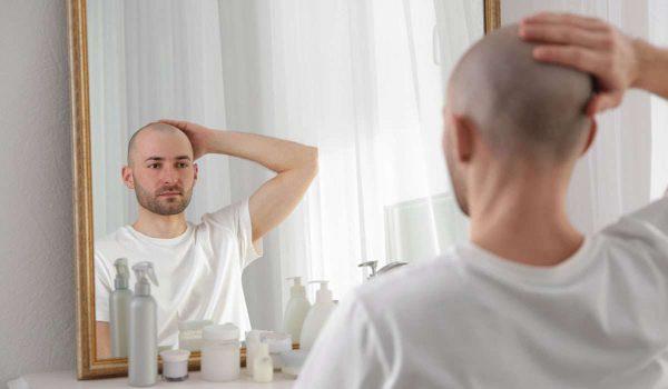 انتفاخ الوجه بعد زراعة الشعر