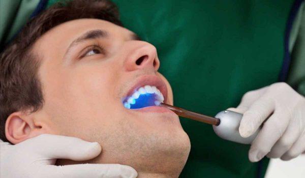 -تسوس-الاسنان-بالليزر