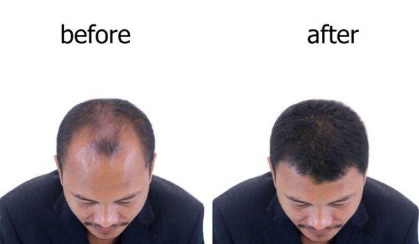 نتائج زراعة الشعر بعد سنة