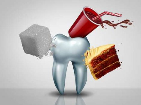 اسباب تسوس الاسنان