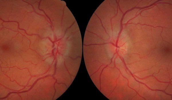 زراعة العصب البصري