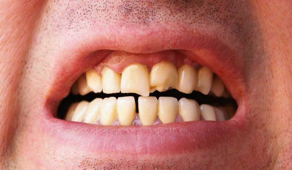اسباب تكسر الاسنان