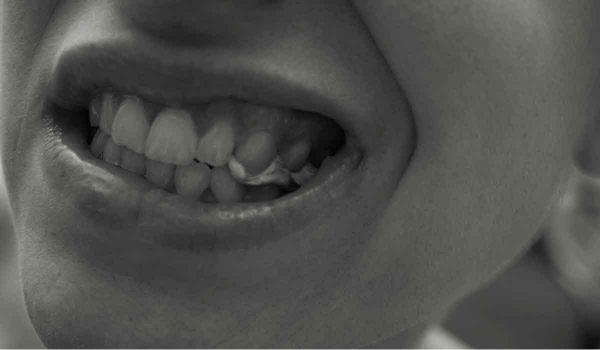 تقوية الاسنان الضعيفة