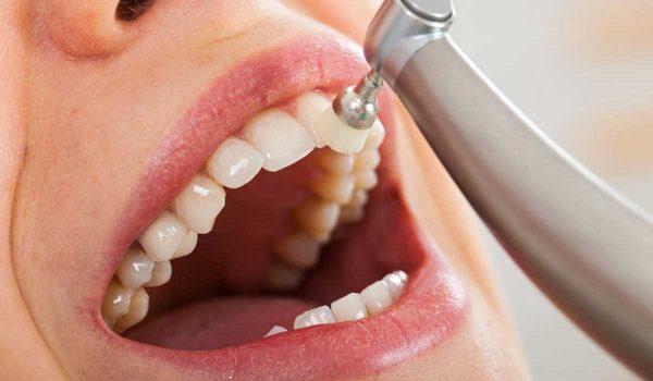 تلميع الاسنان أنواعه ومميزاته وعيوبه تلميع-الاس�