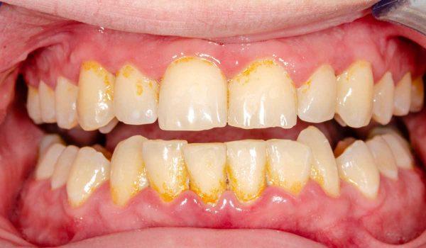 جير الاسنان الاصفر