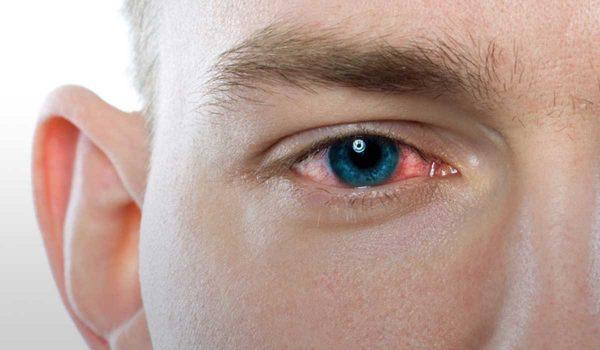 علاج التهاب العين الفيروسي