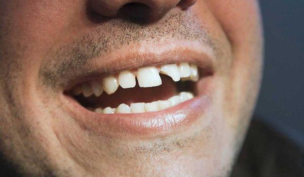 علاج تكسر الاسنان
