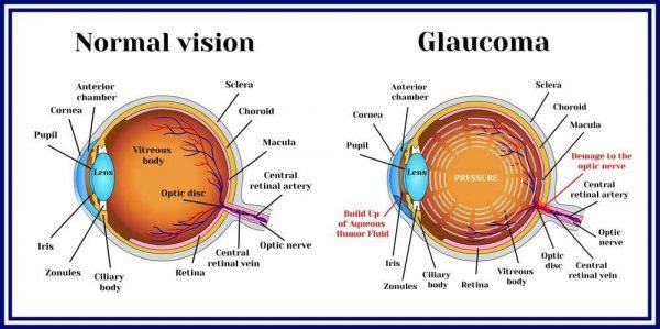 اعراض الجلوكوما التي يجب الانتباه أعراض-الجل�