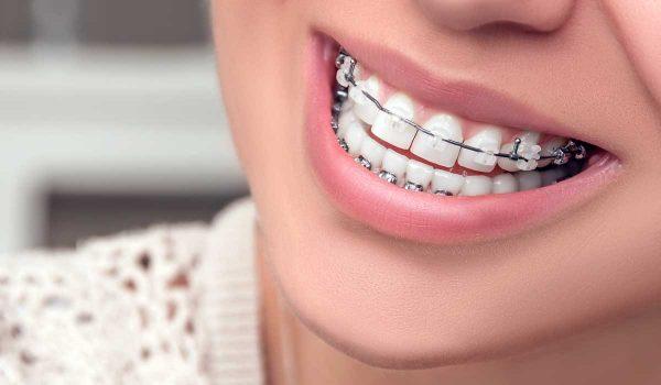 انواع تقويم الاسنان المختلفة وهل التقويم مؤلم للأسنان Nadormagazine Com مجلة الناظور الأولى