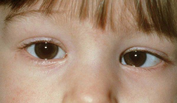 bc27035a3 ما هو الحول الكاذب عند الاطفال ؟ - كل يوم معلومة طبية