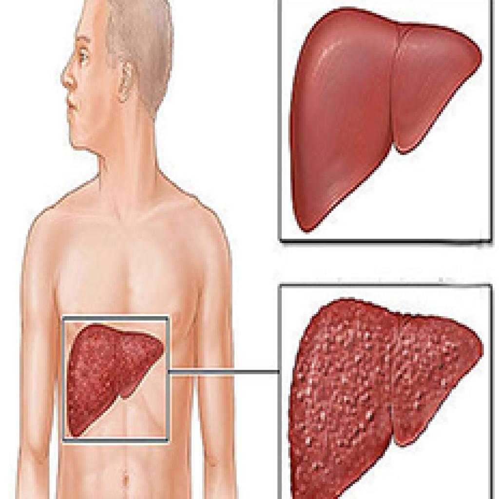 اللجنة القوميه لمكافحة الفيروسات الكبدية
