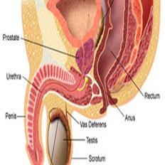 """هبوط مستويات """"التوستيستيرون"""" ينذر بمعاودة الإصابة بسرطان البروستاتا"""
